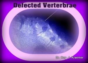 bulldog vertebral anamoly Spinal Vertebral Abnormalities in Bulldogs Butterfly